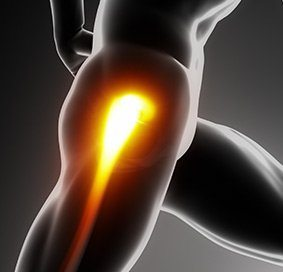 Hip Ligament Injuries