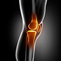 Short-Stay and Fast-Track Knee Replacement