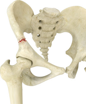 Pelvic Fractures