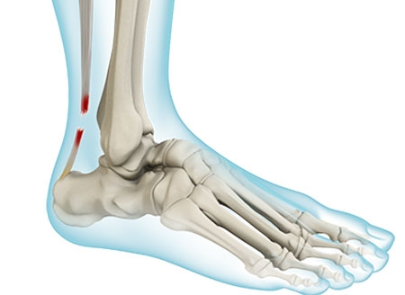 Achilles Tendon Ruptures