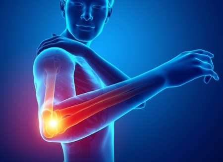 Biceps Tendon Ruptures