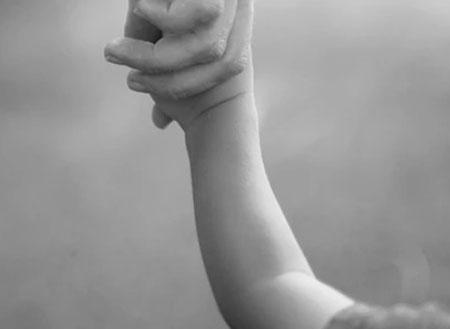 Nursemaid's Elbow